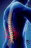Letchworth Physiotherapy Back Pain image